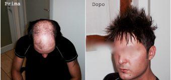 Infoltimento capelli: perché è una necessità per molti