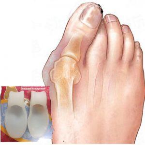 FootMate Valgus