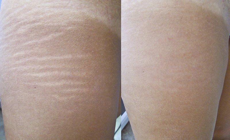 ELASTIX ANTI-SMAGLIATURE prima e dopo