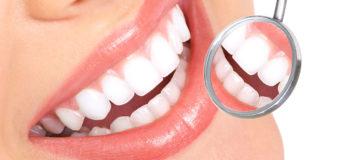 Come fare una perfetta pulizia dei denti