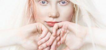 Albinismo: che cos'è, tipologie e come trattare il difetto visivo
